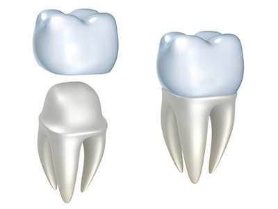 Diagram of dental crown from office of dentist in Wasilla, AK.