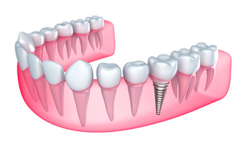 Diagram of dental implants at dentist office in Wasilla, AK.